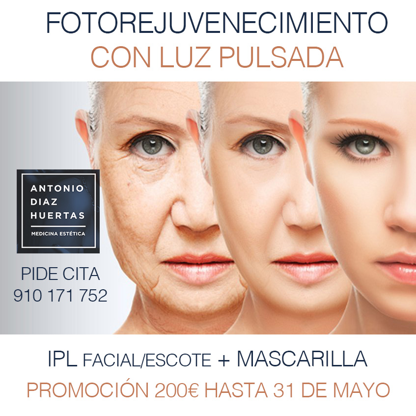 PROMOCIÓN IPL + MASCARILLA