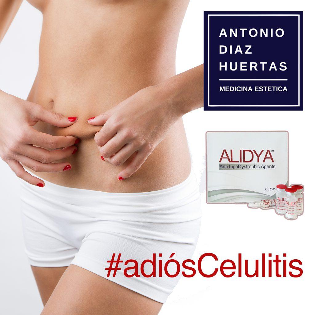 ALIDYA Celulitis